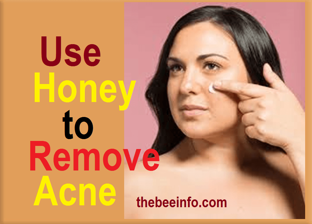 Honey for Acne: How To Use Honey To Remove Acne At Home? (137)